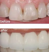 before-after-porcelain