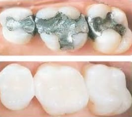 before-after-white-fillings