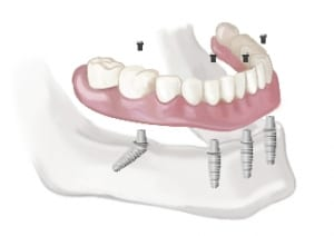 Teeth in a Day Implants - Sidcup