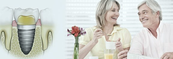 Dental Implant offers